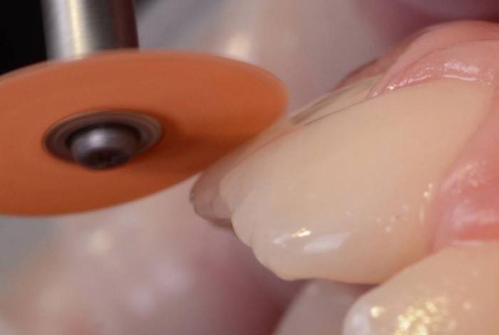 CDEI - Centar za Dentalnu estetiku i Implantologiju - DEČIJA I PREVENTIVNA STOMATOLOGIJA - 1