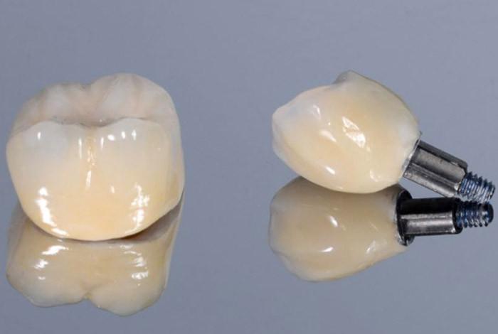 CDEI - Centar za Dentalnu estetiku i Implantologiju - IMPLANTOLOGIJA - 1