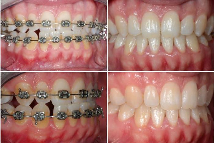 CDEI - Centar za Dentalnu estetiku i Implantologiju - ORTODONCIJA - 1