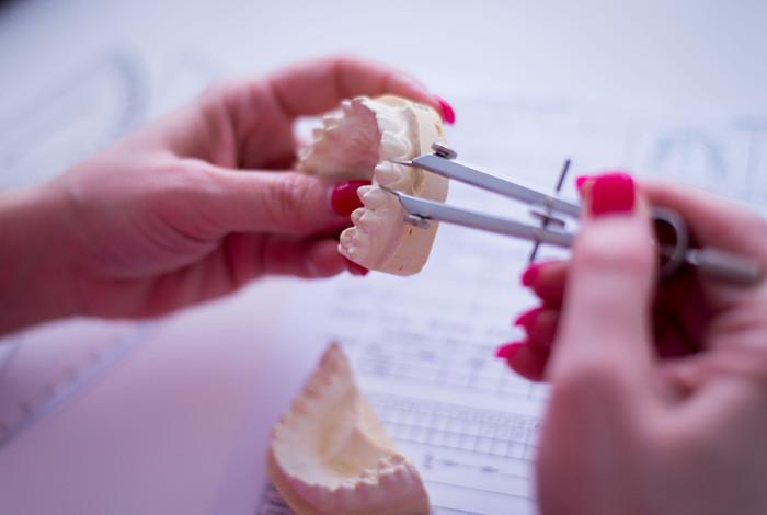 CDEI - Centar za Dentalnu estetiku i Implantologiju - ZUBNA PROTETIKA - 1