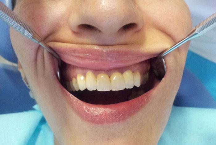 Cvetić Dent stomatološka ordinacija - ORALNA HIRURGIJA - 1