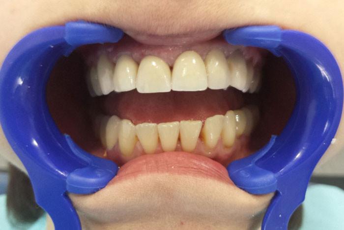 Cvetić Dent stomatološka ordinacija - ZUBNA PROTETIKA - 1