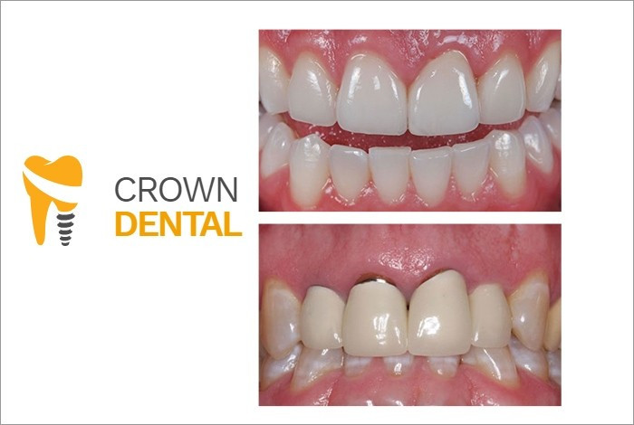Stomatološka ordinacija Crown Dental - ESTETIKA - 1