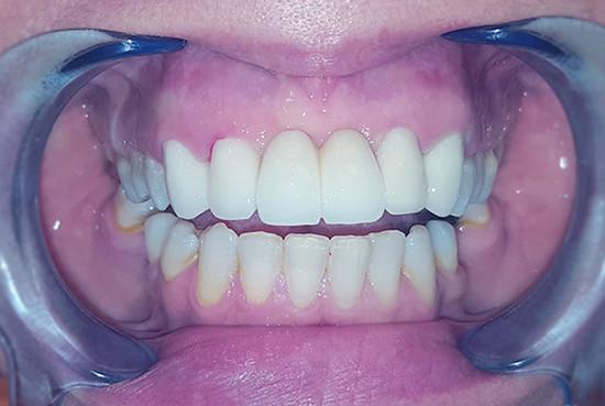 Stomatološka ordinacija Crown Dental - IMPLANTOLOGIJA - 1