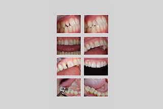 Grey Dental stomatološka ordinacija - ESTETSKA STOMATOLOGIJA - 1
