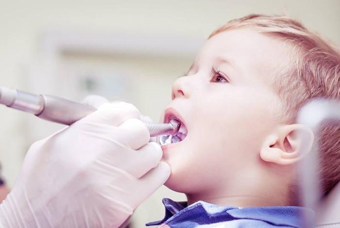 Dental oral centar Milošević - DEČIJA STOMATOLOGIJA - 1