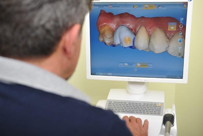 Dental oral centar Milošević - ENDODONCIJA - 1