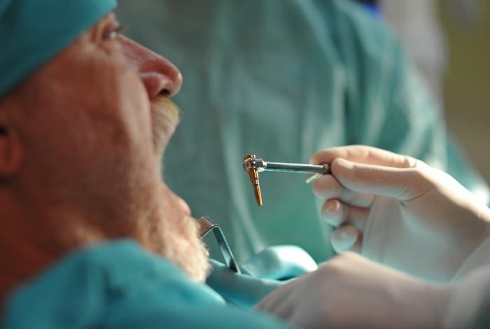 Dental oral centar Milošević - IMPLANTATI - 1